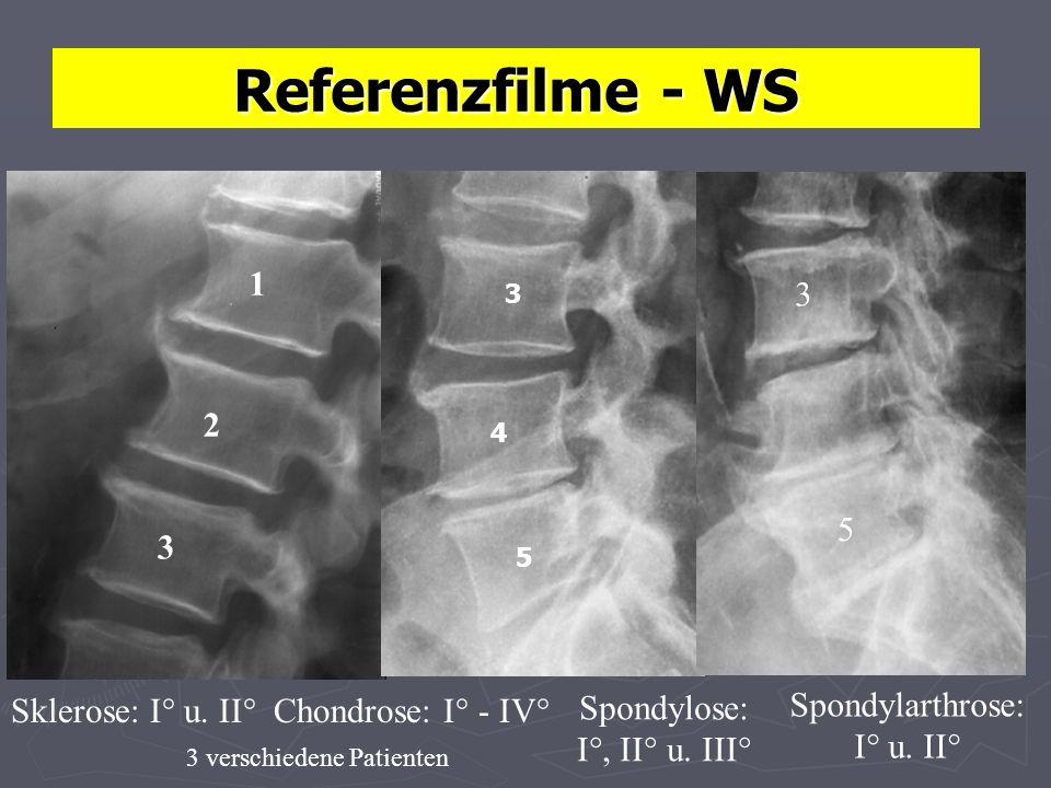 Referenzfilme - WS Sklerose: I° u.II°Chondrose: I° - IV° Spondylose: I°, II° u.