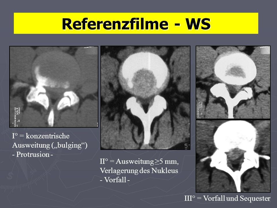 Referenzfilme - WS I° = konzentrische Ausweitung (bulging) - Protrusion - III° = Vorfall und Sequester II° = Ausweitung 5 mm, Verlagerung des Nukleus - Vorfall -