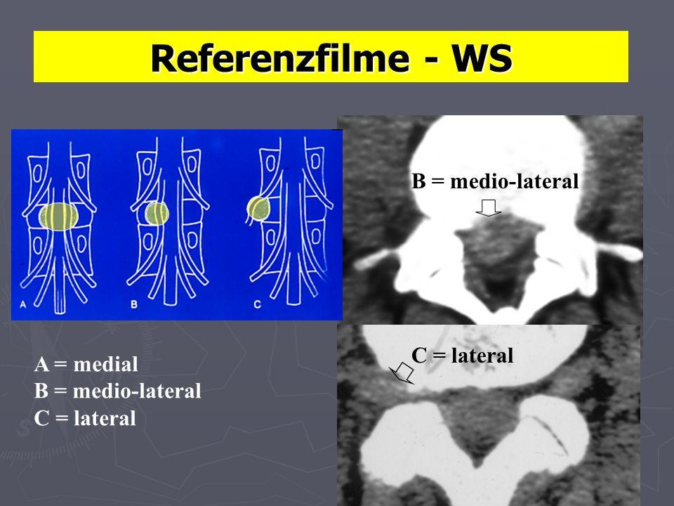 Referenzfilme - WS A = medial B = medio-lateral C = lateral B = medio-lateral