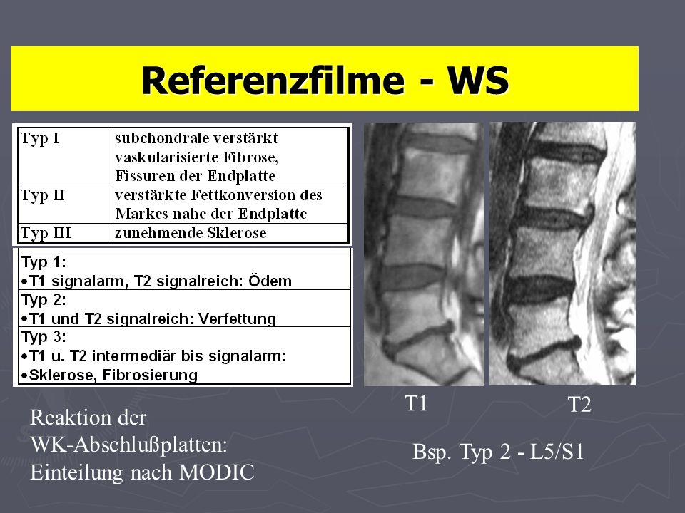 Referenzfilme - WS T2 T1 Reaktion der WK-Abschlußplatten: Einteilung nach MODIC Bsp. Typ 2 - L5/S1