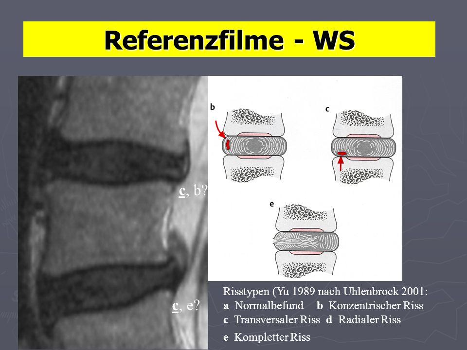 Referenzfilme - WS Risstypen (Yu 1989 nach Uhlenbrock 2001: a Normalbefundb Konzentrischer Riss c Transversaler Riss d Radialer Riss e Kompletter Riss c, b.