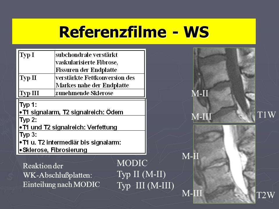 Referenzfilme - WS Reaktion der WK-Abschlußplatten: Einteilung nach MODIC MODIC Typ II (M-II) Typ III (M-III) T1W T2W M-III M-II M-III