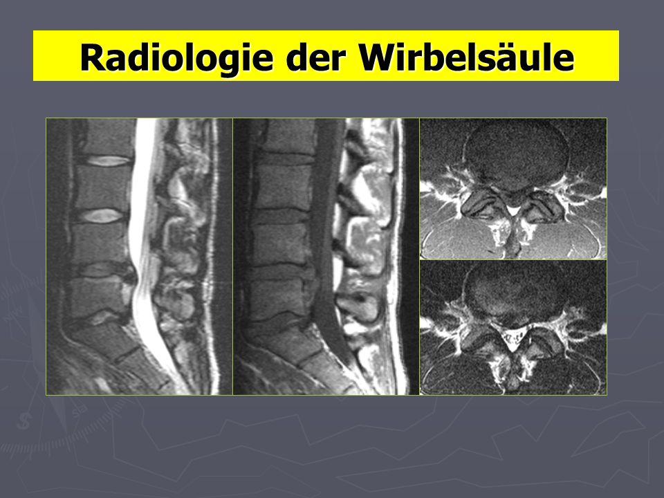 Radiologie der Wirbelsäule