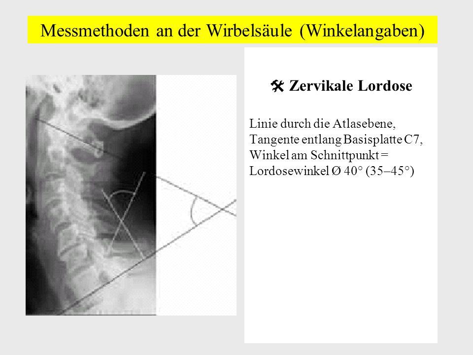 Messmethoden an der Wirbelsäule (Winkelangaben) Zervikale Lordose Linie durch die Atlasebene, Tangente entlang Basisplatte C7, Winkel am Schnittpunkt = Lordosewinkel Ø 40° (35–45°)