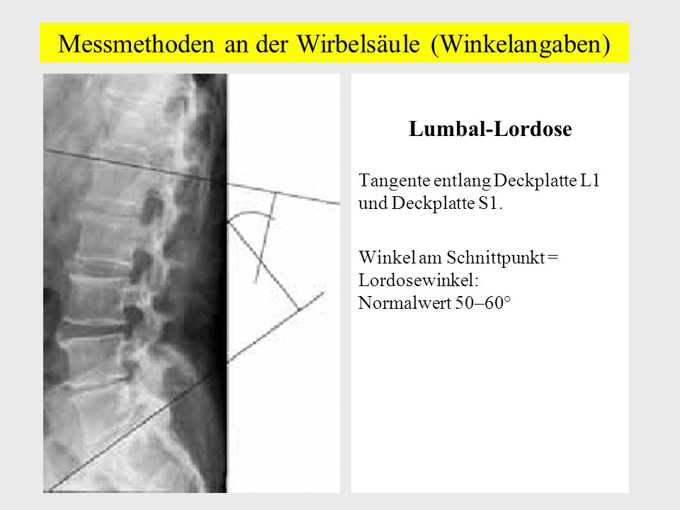 Messmethoden an der Wirbelsäule (Winkelangaben) Lumbal-Lordose Tangente entlang Deckplatte L1 und Deckplatte S1.