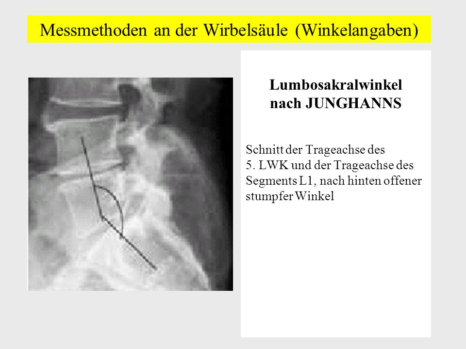 Messmethoden an der Wirbelsäule (Winkelangaben) Lumbosakralwinkel nach JUNGHANNS Schnitt der Trageachse des 5.