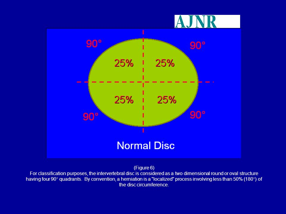(Figure 6) For classification purposes, the intervertebral disc is considered as a two dimensional round or oval structure having four 90 quadrants. B