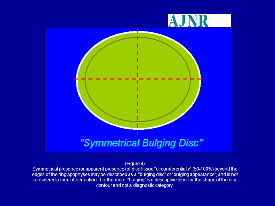(Figure 9) Symmetrical presence (or apparent presence) of disc tissue