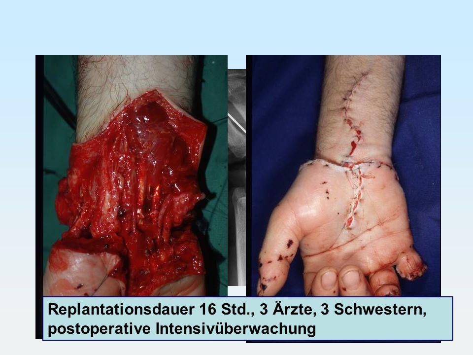 Replantationsdauer 16 Std., 3 Ärzte, 3 Schwestern, postoperative Intensivüberwachung