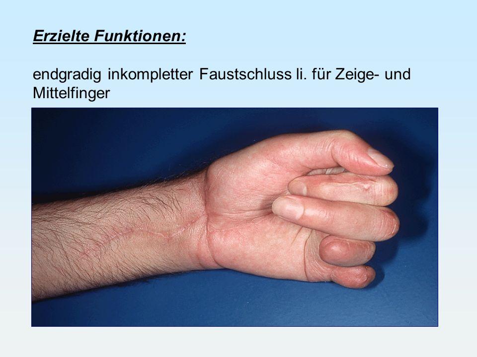 Erzielte Funktionen: endgradig inkompletter Faustschluss li. für Zeige- und Mittelfinger