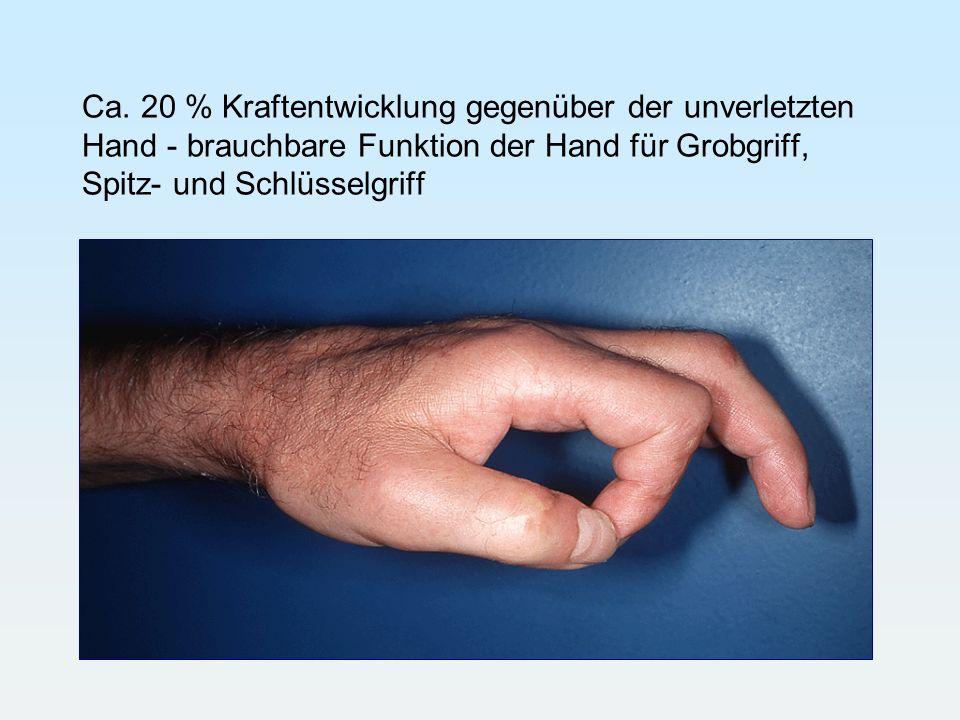 Ca. 20 % Kraftentwicklung gegenüber der unverletzten Hand - brauchbare Funktion der Hand für Grobgriff, Spitz- und Schlüsselgriff