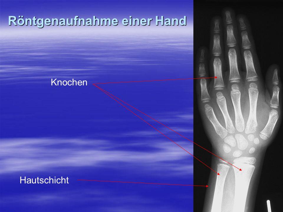 Röntgenaufnahme einer Hand Knochen Hautschicht