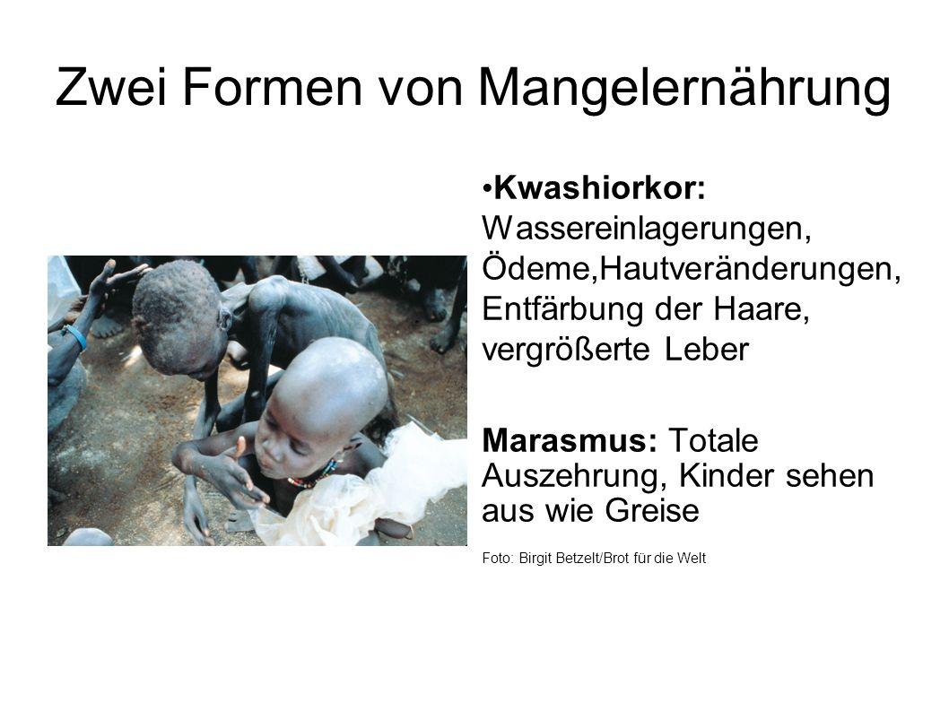 Zwei Formen von Mangelernährung Kwashiorkor: Wassereinlagerungen, Ödeme,Hautveränderungen, Entfärbung der Haare, vergrößerte Leber Marasmus: Totale Au