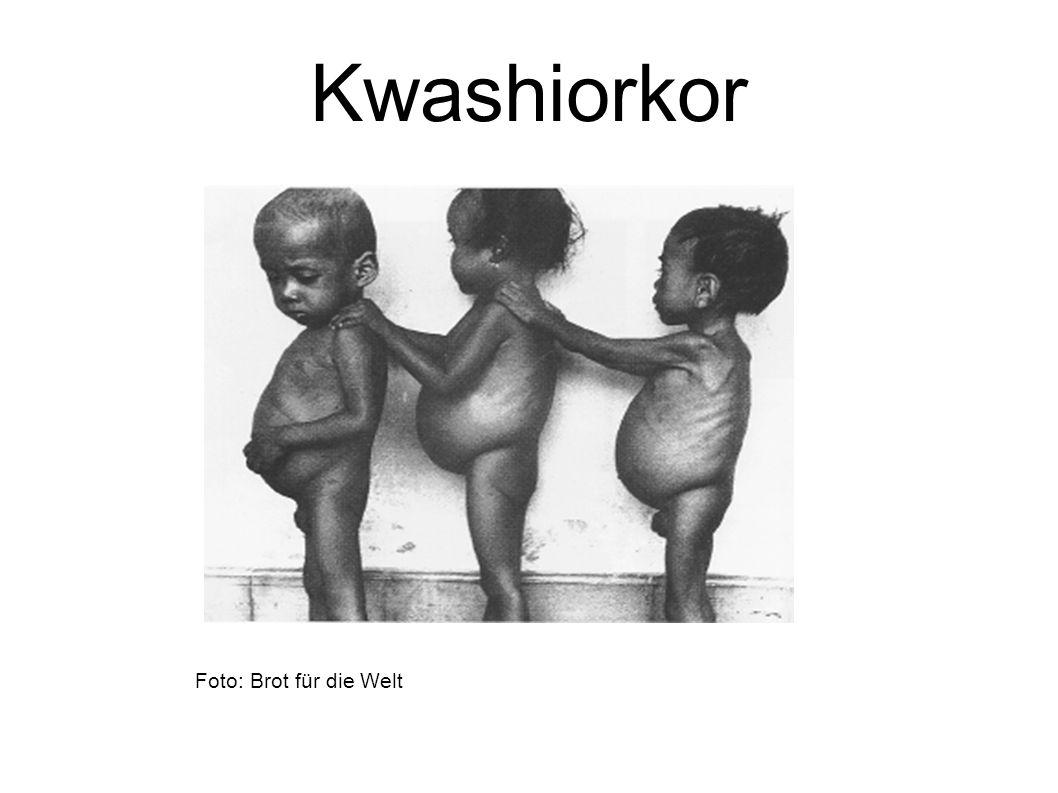 Kwashiorkor Foto: Brot für die Welt