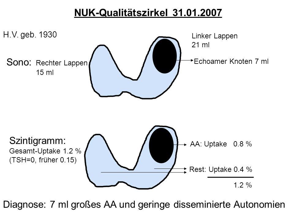 H.V. geb. 1930 Sono: Rechter Lappen 15 ml Linker Lappen 21 ml Echoamer Knoten 7 ml Szintigramm: Gesamt-Uptake 1.2 % (TSH=0, früher 0.15) AA: Uptake 0.