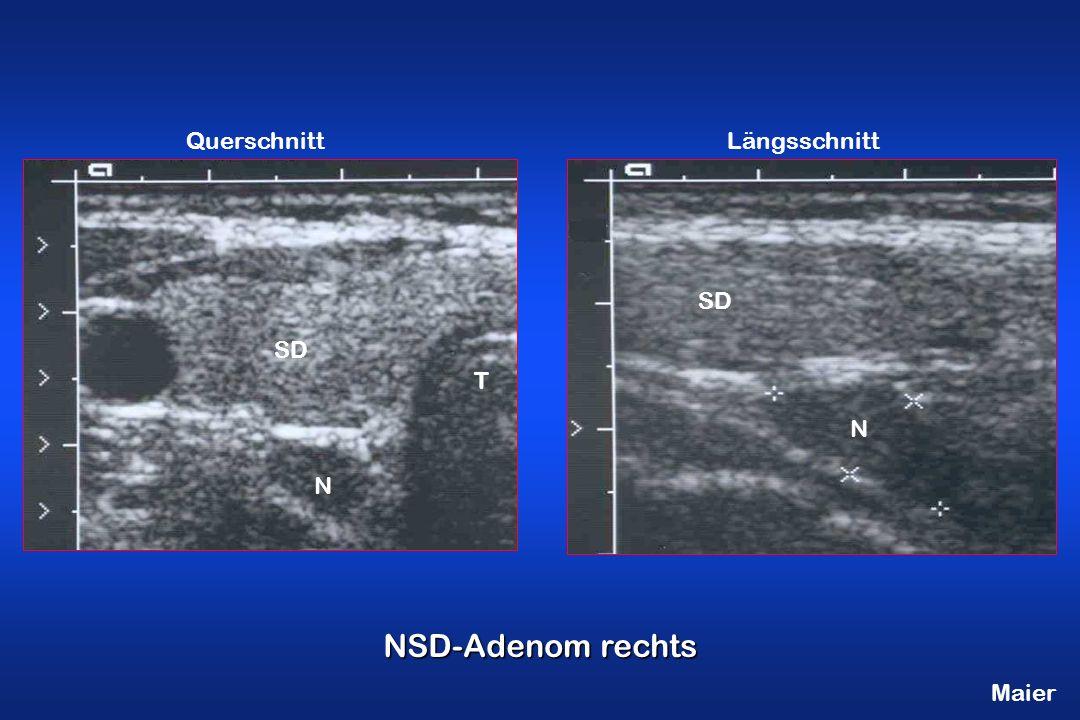 Maier NSD-Adenom rechts QuerschnittLängsschnitt T SD N N