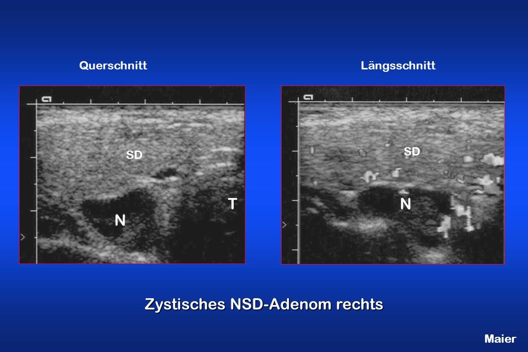 Maier Zystisches NSD-Adenom rechts N SD N T QuerschnittLängsschnitt Maier
