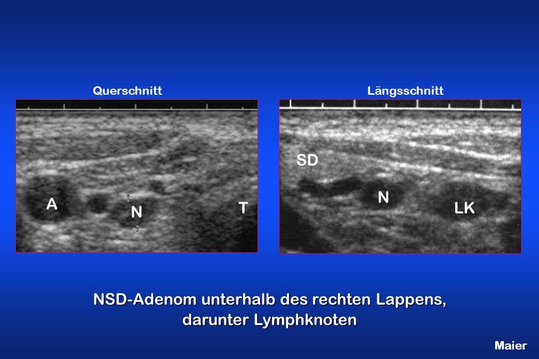 NSD-Adenom unterhalb des rechten Lappens, darunter Lymphknoten T N LK N QuerschnittLängsschnitt SD A Maier