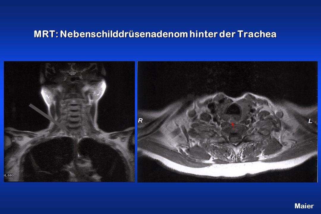 Maier MRT: Nebenschilddrüsenadenom hinter der Trachea