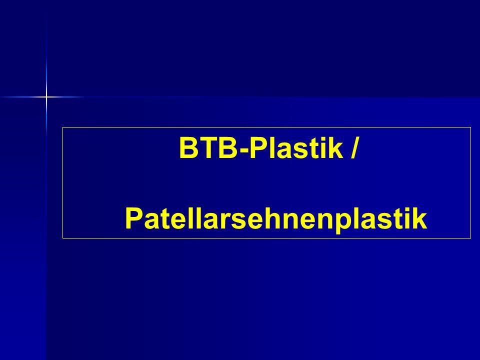 BTB-Plastik / Patellarsehnenplastik