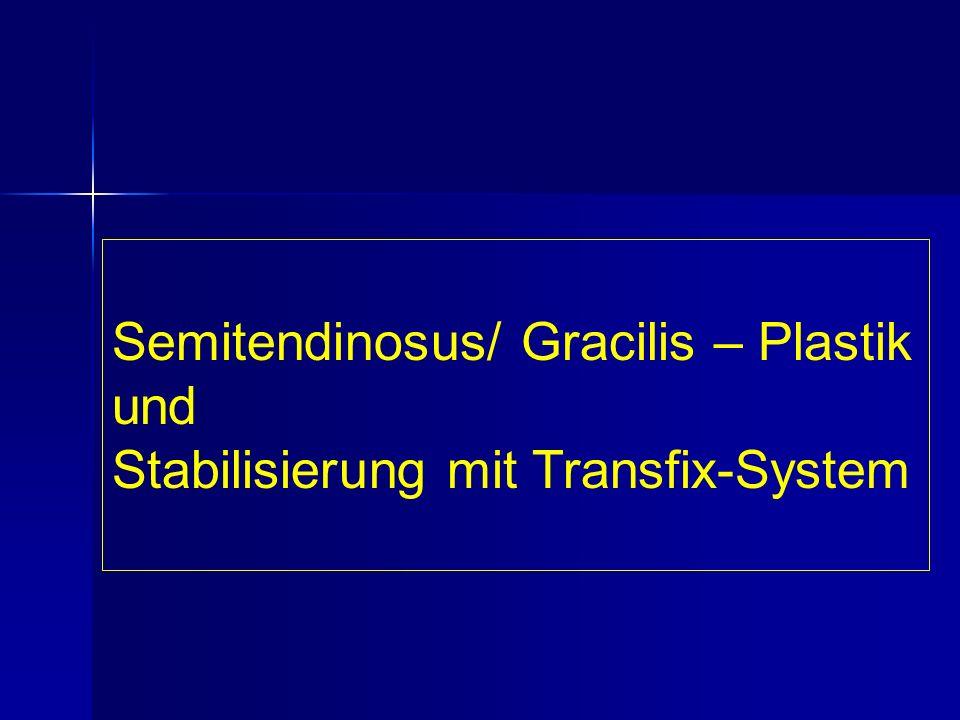 Semitendinosus/ Gracilis – Plastik und Stabilisierung mit Transfix-System
