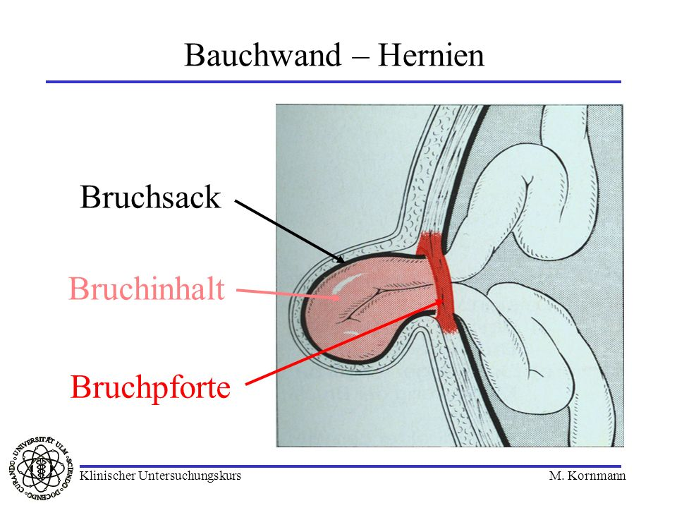 Bauchwand – Hernien Bruchpforte Bruchsack Bruchinhalt Klinischer Untersuchungskurs M. Kornmann