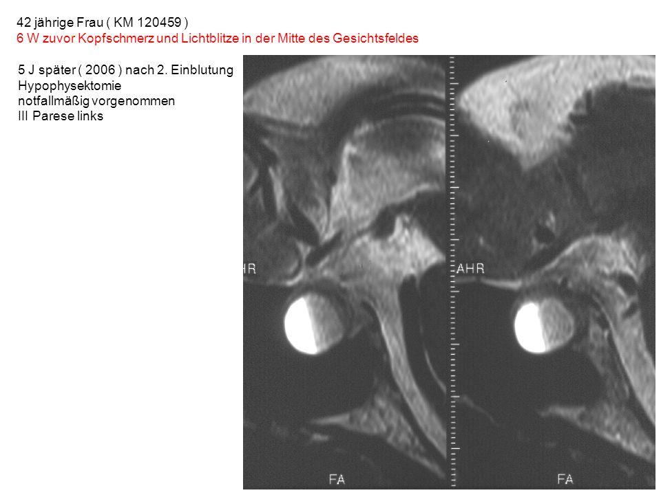 42 jährige Frau ( KM 120459 ) 6 W zuvor Kopfschmerz und Lichtblitze in der Mitte des Gesichtsfeldes 5 J später ( 2006 ) nach 2. Einblutung Hypophysekt