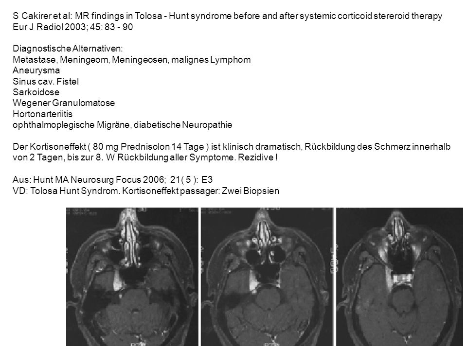 S Cakirer et al: MR findings in Tolosa - Hunt syndrome before and after systemic corticoid stereroid therapy Eur J Radiol 2003; 45: 83 - 90 Diagnostis