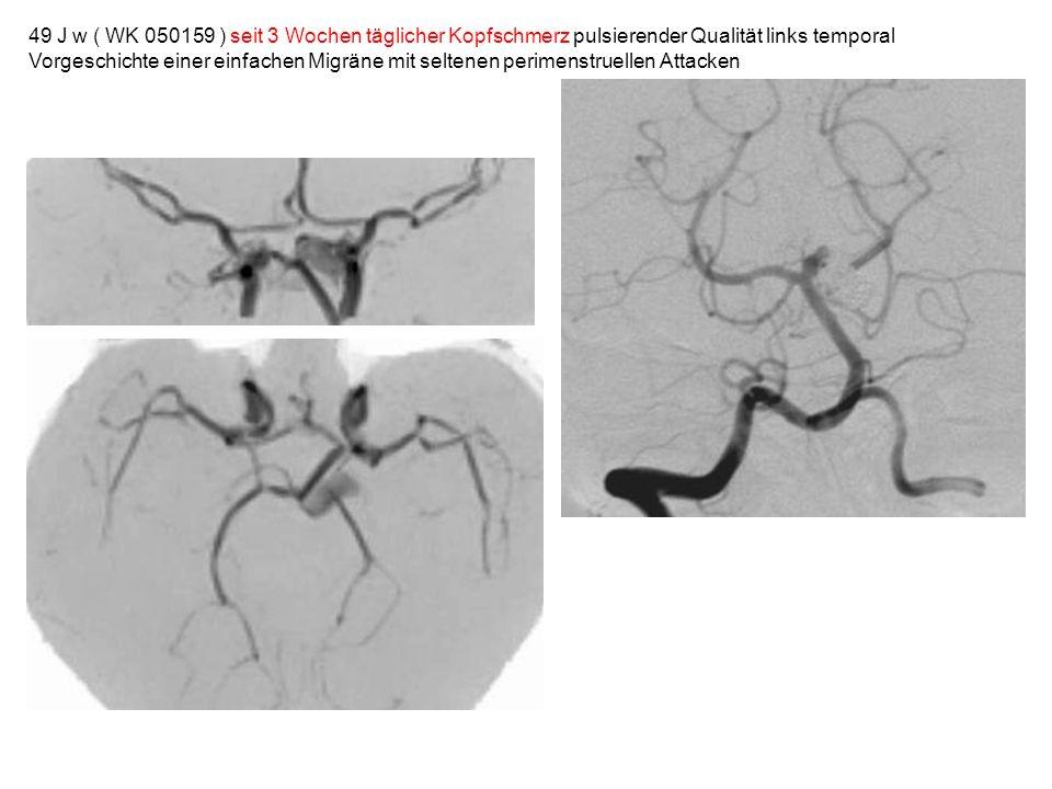 49 J w ( WK 050159 ) seit 3 Wochen täglicher Kopfschmerz pulsierender Qualität links temporal Vorgeschichte einer einfachen Migräne mit seltenen perim
