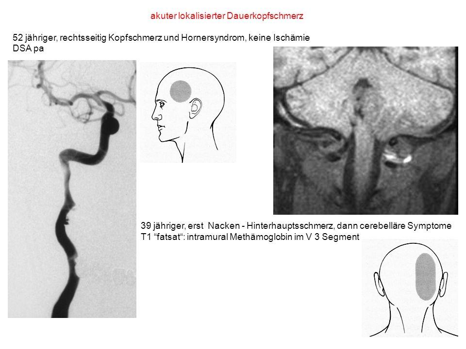 akuter lokalisierter Dauerkopfschmerz 52 jähriger, rechtsseitig Kopfschmerz und Hornersyndrom, keine Ischämie DSA pa 39 jähriger, erst Nacken - Hinter