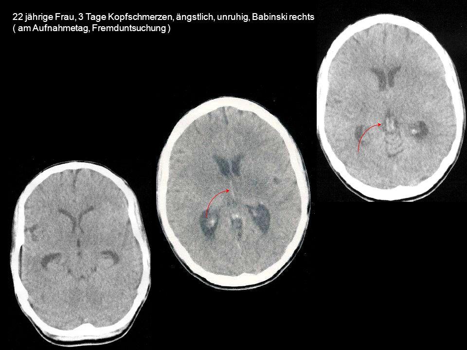 22 jährige Frau, 3 Tage Kopfschmerzen, ängstlich, unruhig, Babinski rechts ( am Aufnahmetag, Fremduntsuchung )