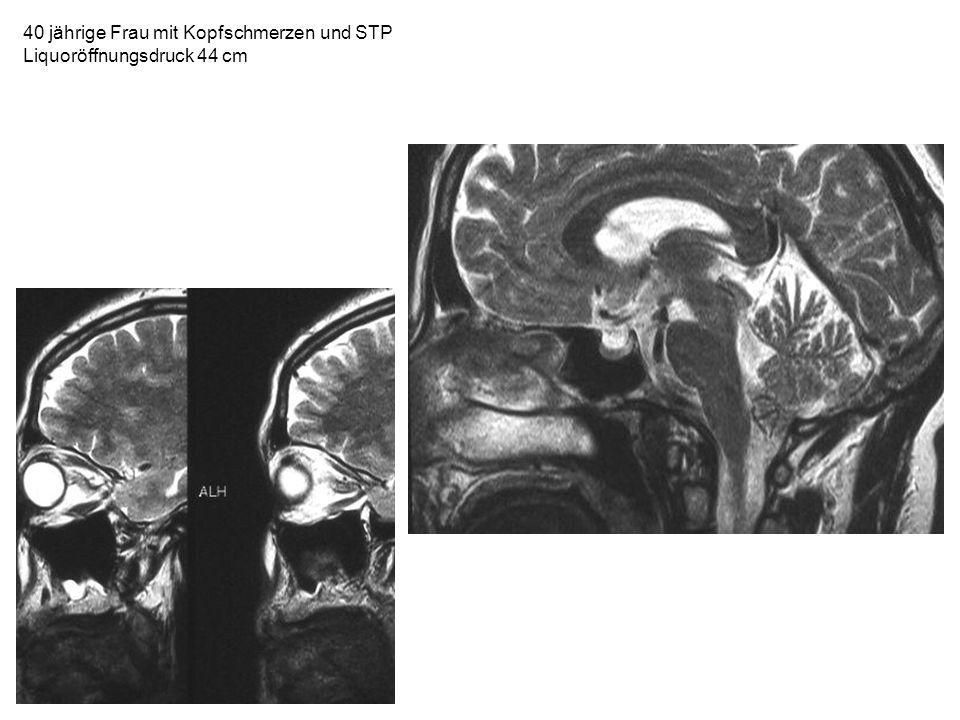 40 jährige Frau mit Kopfschmerzen und STP Liquoröffnungsdruck 44 cm