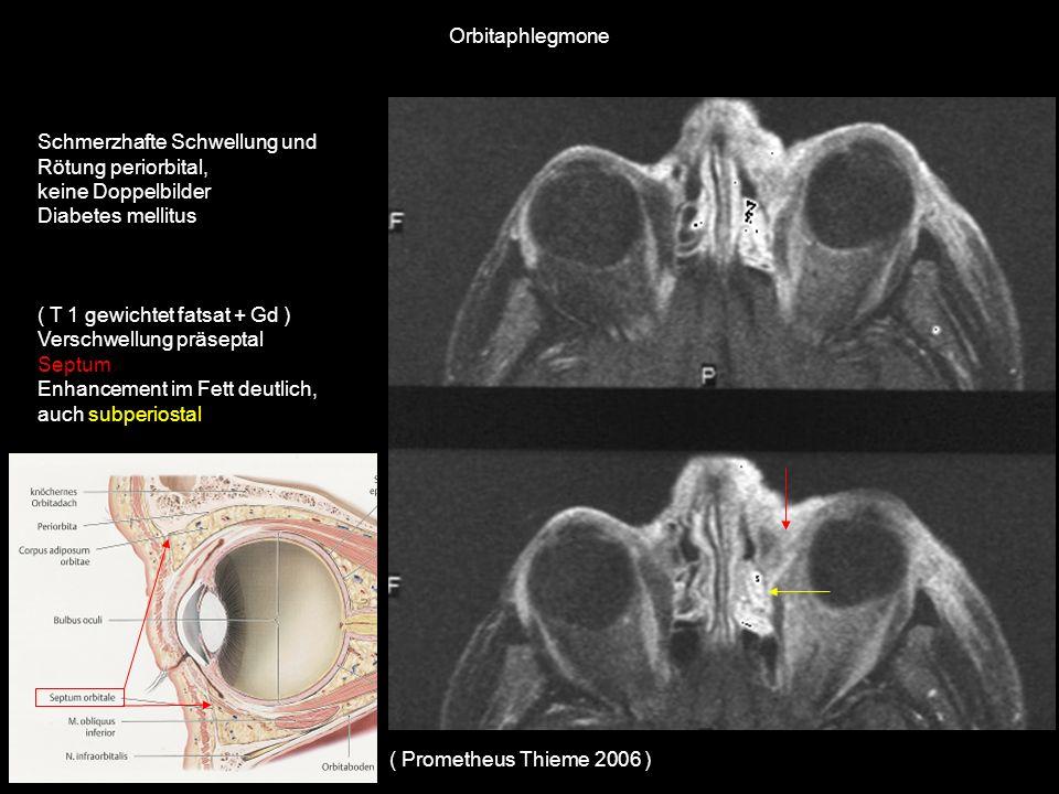 Schmerzhafte Schwellung und Rötung periorbital, keine Doppelbilder Diabetes mellitus ( T 1 gewichtet fatsat + Gd ) Verschwellung präseptal Septum Enha