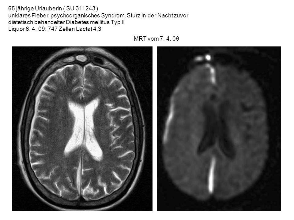 65 jährige Urlauberin ( SU 311243 ) unklares Fieber, psychoorganisches Syndrom, Sturz in der Nacht zuvor diätetisch behandelter Diabetes mellitus Typ