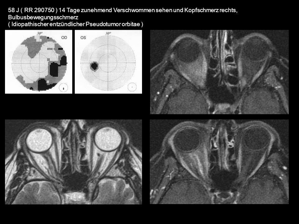 58 J ( RR 290750 ) 14 Tage zunehmend Verschwommen sehen und Kopfschmerz rechts, Bulbusbewegungsschmerz ( Idiopathischer entzündlicher Pseudotumor orbi