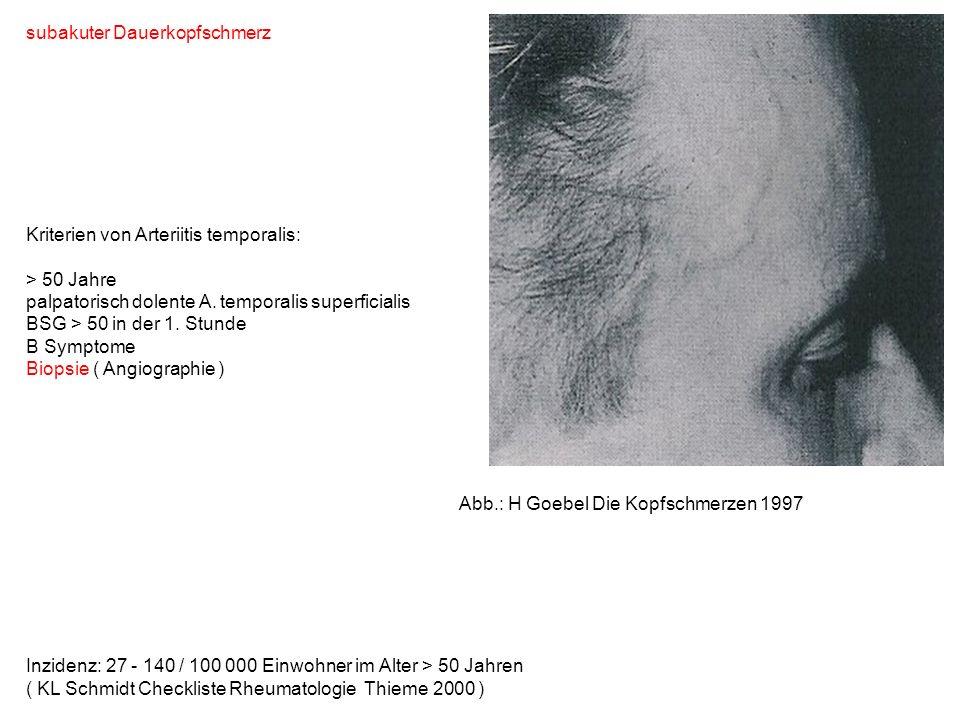 subakuter Dauerkopfschmerz Kriterien von Arteriitis temporalis: > 50 Jahre palpatorisch dolente A. temporalis superficialis BSG > 50 in der 1. Stunde