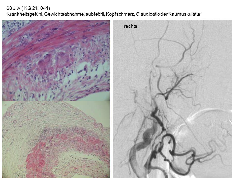 68 J w ( KG 211041) Krankheitsgefühl, Gewichtsabnahme, subfebril, Kopfschmerz, Claudicatio der Kaumuskulatur rechts