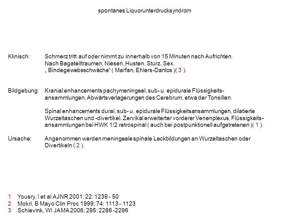 spontanes Liquorunterdrucksyndrom 1 Yousry, I et al AJNR 2001; 22: 1239 - 50 2 Mokri, B Mayo Clin Proc 1999; 74: 1113 - 1123 3 Schievink, WI JAMA 2006