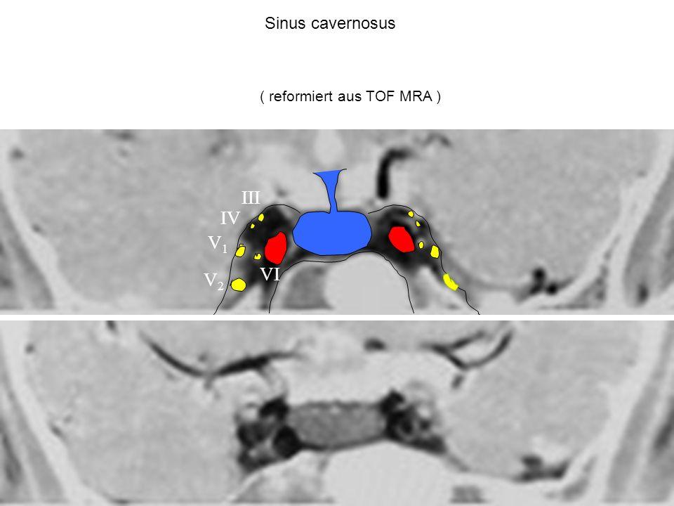 V1V1 V2V2 III VI IV Sinus cavernosus ( reformiert aus TOF MRA )