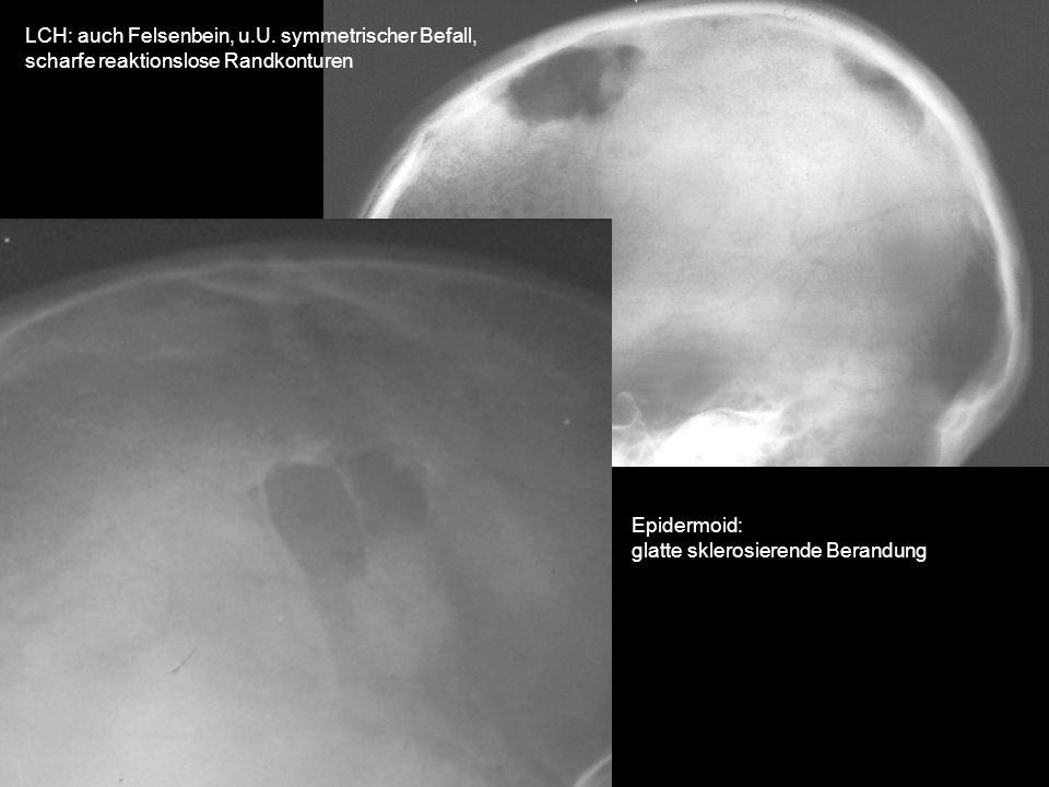 LCH: auch Felsenbein, u.U. symmetrischer Befall, scharfe reaktionslose Randkonturen Epidermoid: glatte sklerosierende Berandung