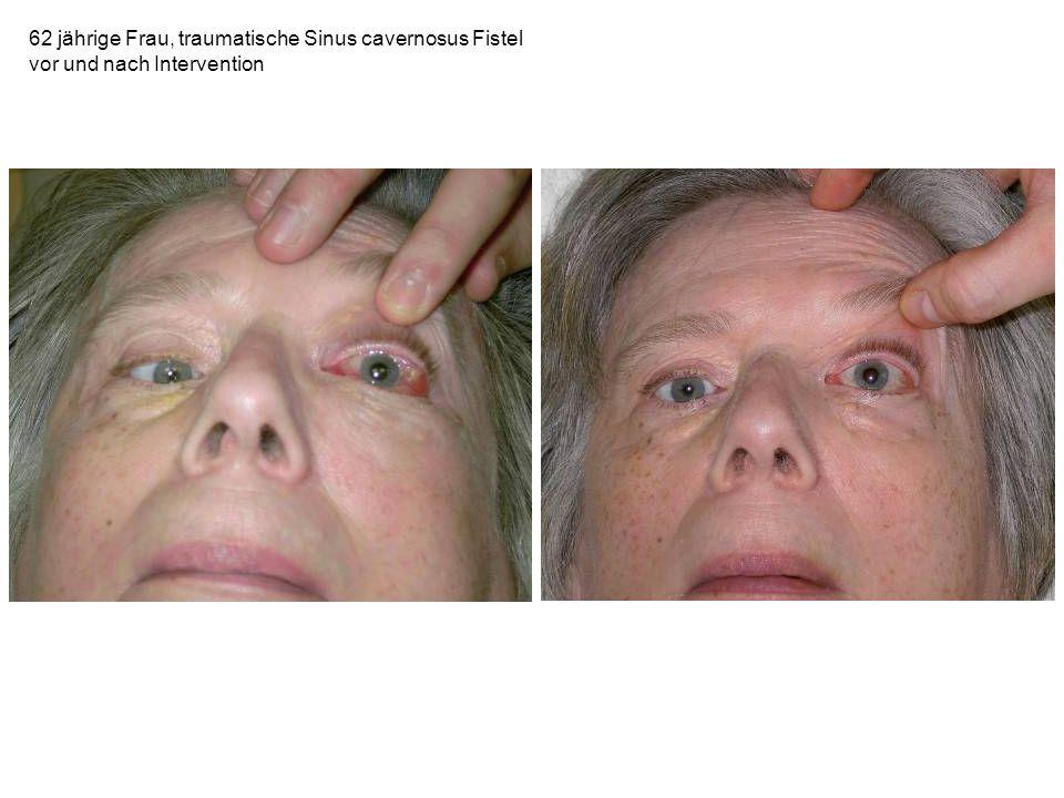 62 jährige Frau, traumatische Sinus cavernosus Fistel vor und nach Intervention