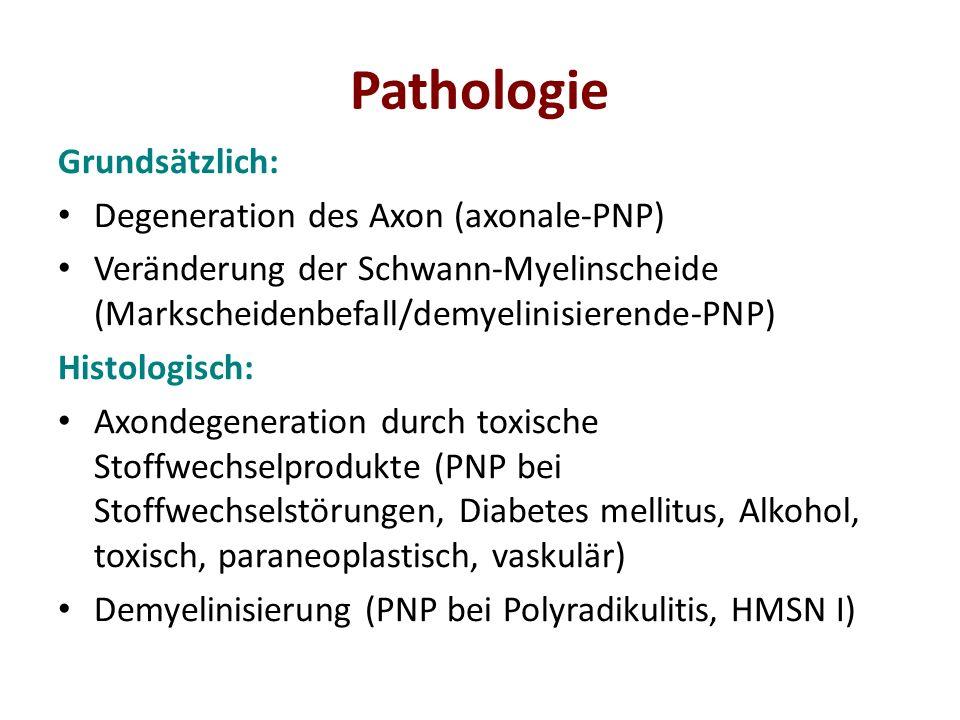 Pathologie Grundsätzlich: Degeneration des Axon (axonale-PNP) Veränderung der Schwann-Myelinscheide (Markscheidenbefall/demyelinisierende-PNP) Histolo