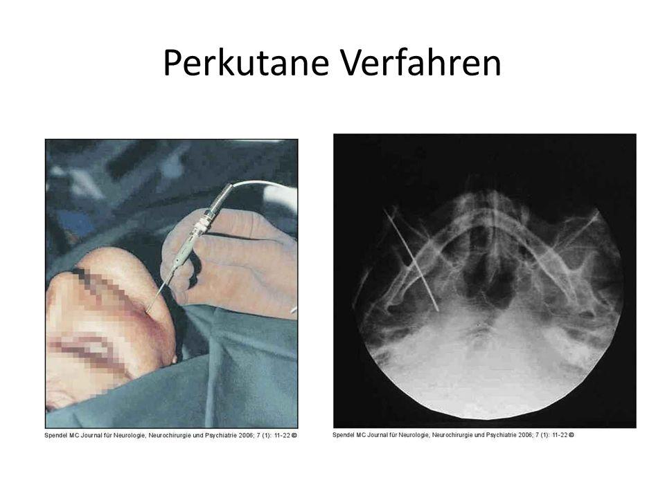 Perkutane Verfahren