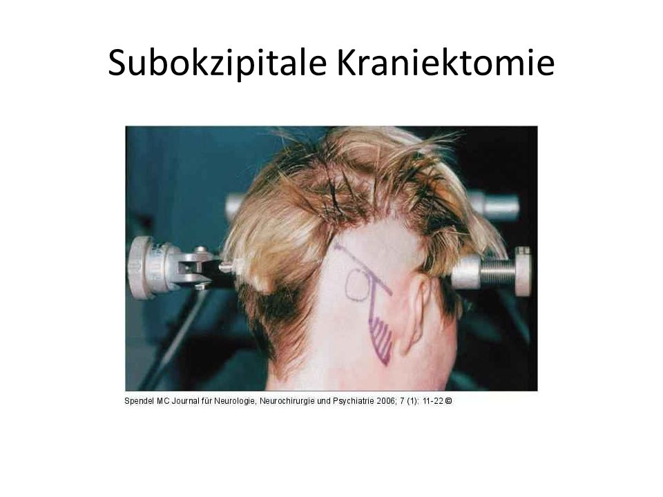 Subokzipitale Kraniektomie