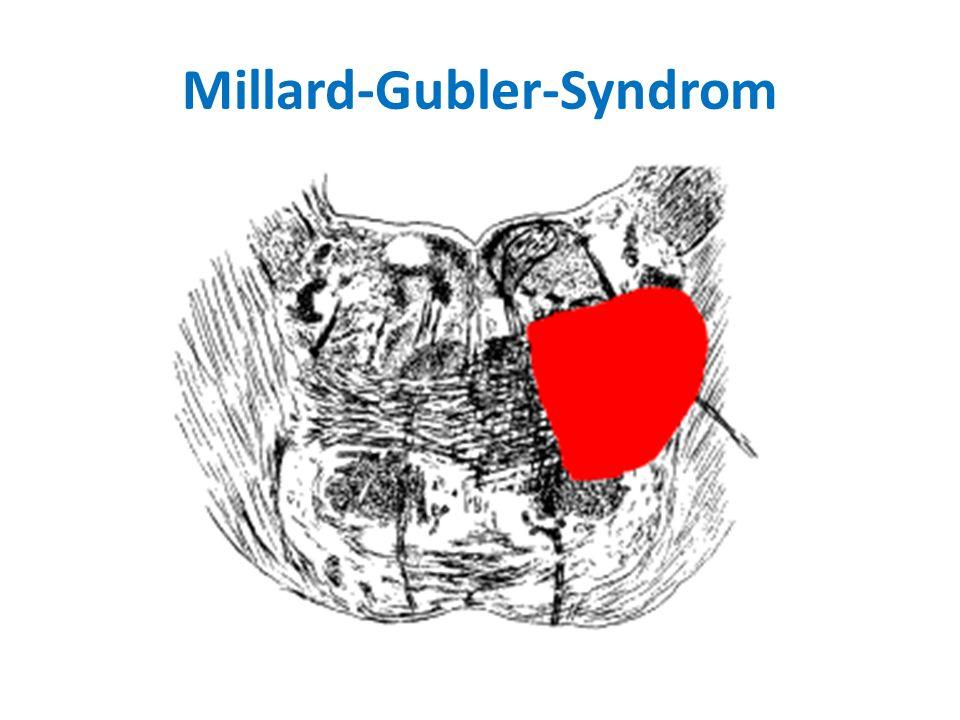 Millard-Gubler-Syndrom