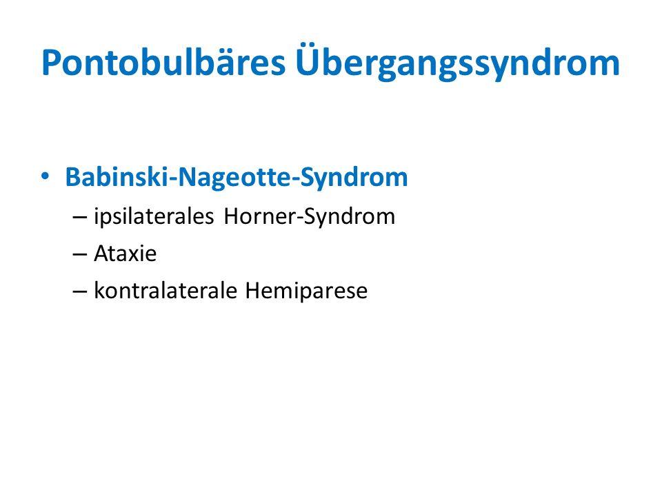 Pontobulbäres Übergangssyndrom Babinski-Nageotte-Syndrom – ipsilaterales Horner-Syndrom – Ataxie – kontralaterale Hemiparese