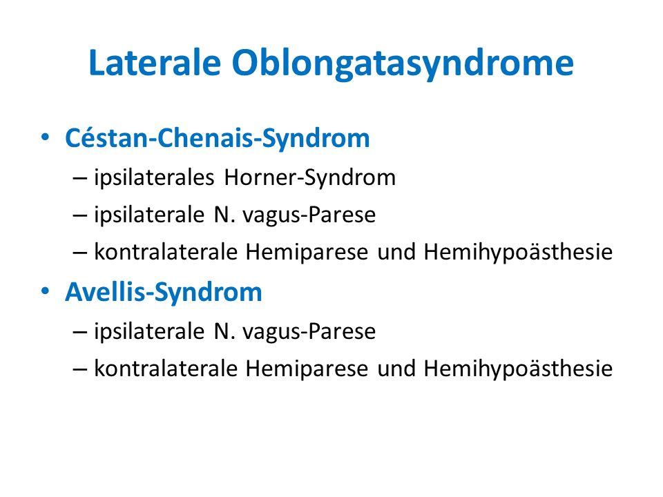 Laterale Oblongatasyndrome Céstan-Chenais-Syndrom – ipsilaterales Horner-Syndrom – ipsilaterale N. vagus-Parese – kontralaterale Hemiparese und Hemihy