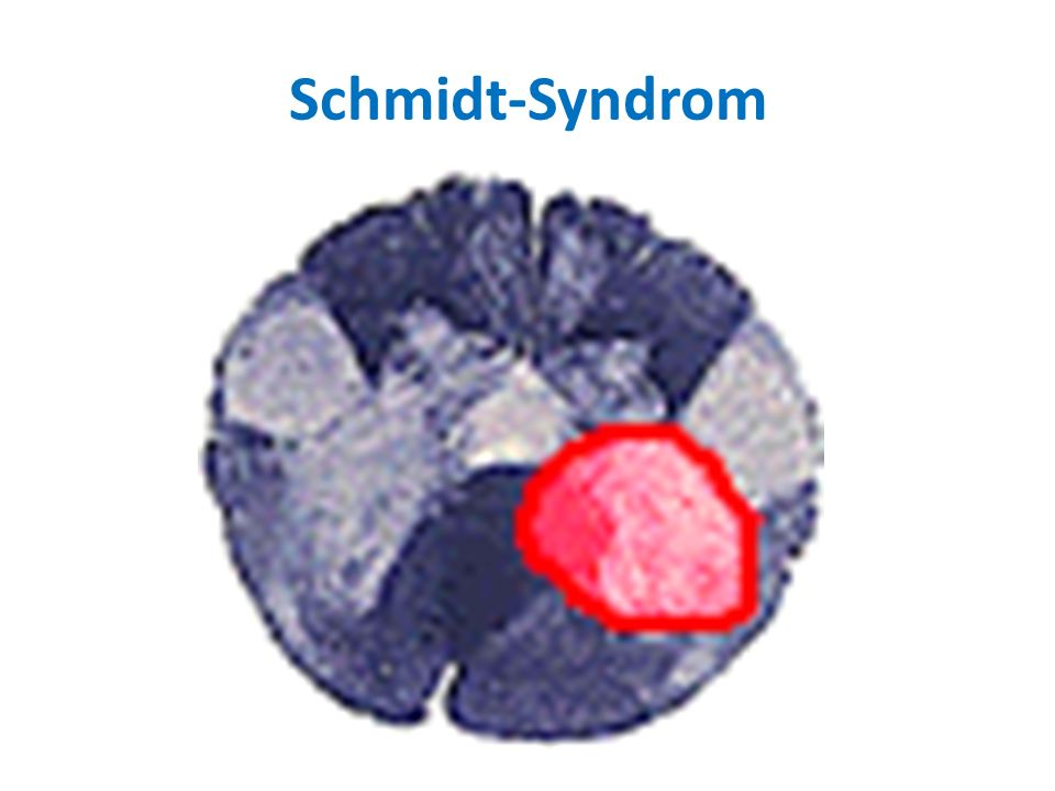 Schmidt-Syndrom