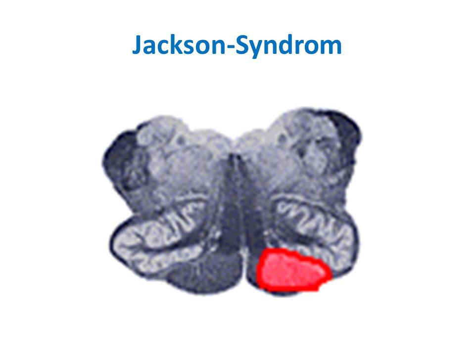 Jackson-Syndrom