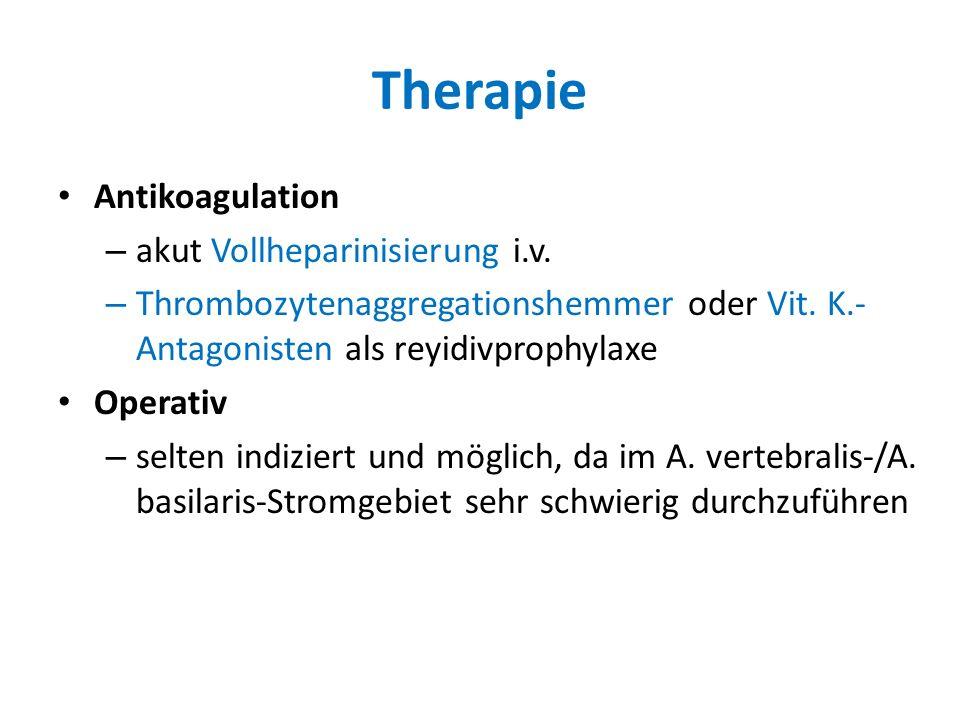 Therapie Antikoagulation – akut Vollheparinisierung i.v. – Thrombozytenaggregationshemmer oder Vit. K.- Antagonisten als reyidivprophylaxe Operativ –